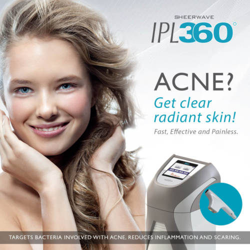 acne treatment victoria bc