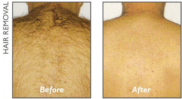 back hair removal victoria