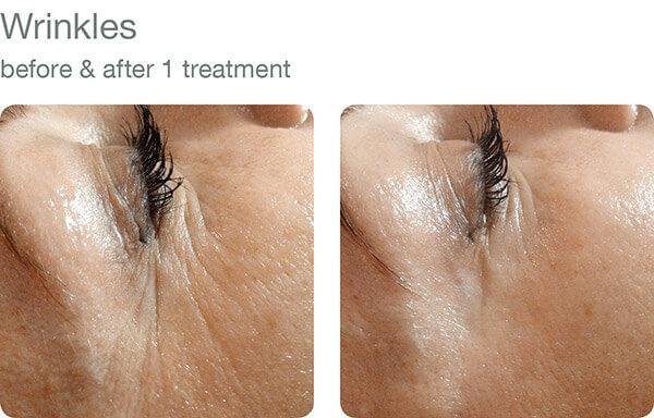 reduce wrinkles victoria