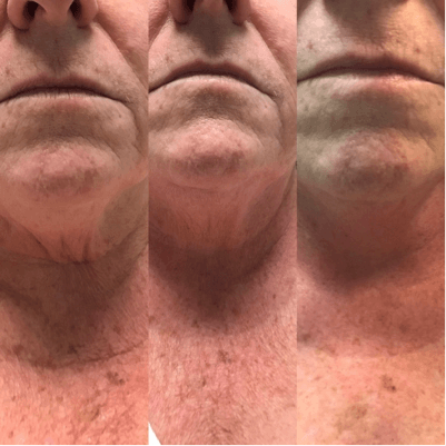 rf-skin-tightening-turkey-neck