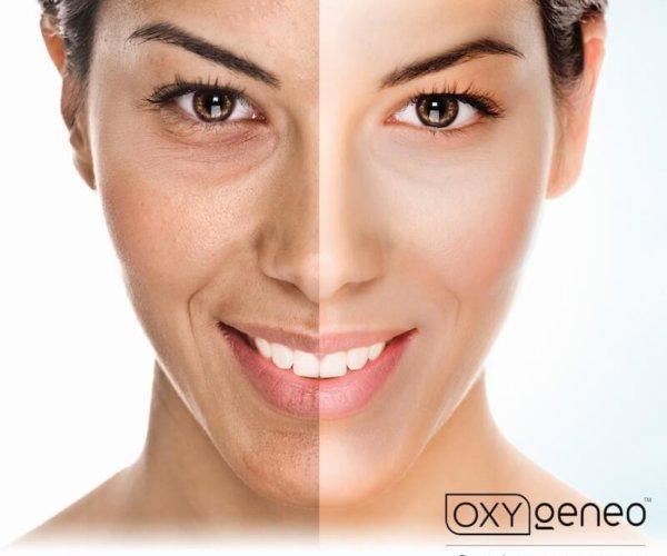 oxy geneo comparison